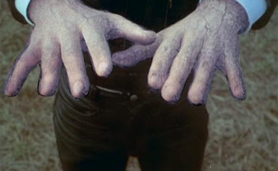 Kalte Finger.